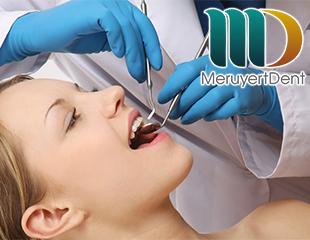 Лечение пульпита и периодонтита в стоматологии Meruyert Dent со скидкой 60%!