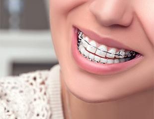 Идеальная улыбка - у Вас! Установка металлических, керамических, сапфировых и самолигирующих брекетов в стоматологии Ауырма Жаным со скидкой до 75%!