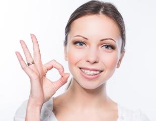 Установка самолигирующих, металлических, керамических или сапфировых брекетовв клинике Rauza-Dent со скидкой до 73%!