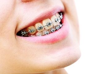 Установка сапфировых, керамических брекетов и пластинок для исправления прикуса и выравнивания зубов в клинике Ваш Стоматолог со скидкой до 73%!