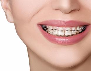 Установка брекетов, виниров и художественная реставрация зубов со скидкой до 75% от KAU clinic!