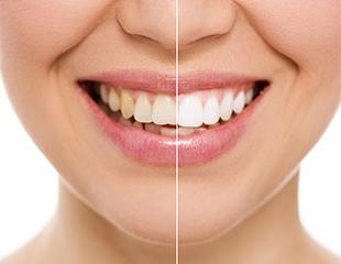 Инновационное фотоотбеливание зубов от 3 до 20 и более оттенков «ZoomLine»+ реминерализующая терапия, лечение, удаление зубов в стоматологической клинике DentalExpert! Cкидка до 72%