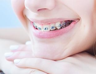 Установка металлической брекет-системы на одну или две челюсти, импланты и комплексная чистка зубов в стоматологической клинике EXPO-DENT!Скидка до 75%.
