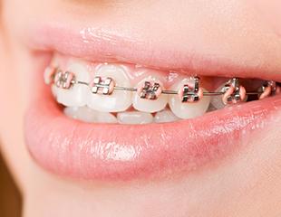 Установка брекетов и виниров в стоматологии MegaDent! Скидка до 73%