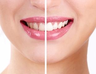 Ультразвуковая чистка и Air Flow + полировка зубов в стоматологии Delta Stom! Скидка 71%