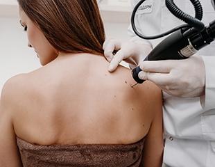 Лазерное удаление татуажа бровей или губ со скидкой до 94% в Lotus Delux!