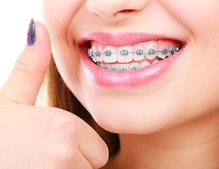 Установка металлических, керамических, сапфировых и самолигирующих брекетов со скидкой до 75% от стоматолога Азнабакиева Курванжана!