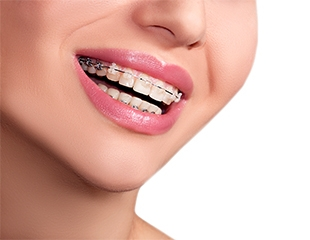 Скидка до 67% на установку брекетов в стоматологии Дентал-Сервис!