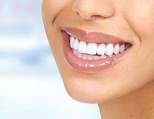 Механическая чистка зубов, установка брекетов, а также курс лечения десен в стоматологии Улыбка со скидкой до 57%!