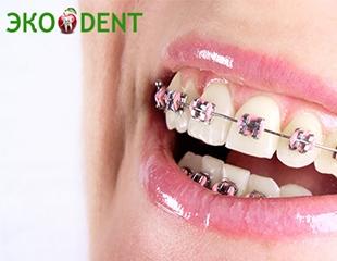 Идеальная улыбка! Металлические, керамические, сапфировые и самолигирующие брекеты от стоматологии «Эко Dent» со скидкой до 75%!