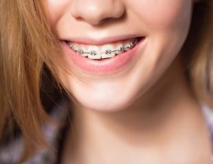 Каждый день достоин Вашей улыбки! Установка металлических и керамических брекетов со скидкой до 75% в стоматологии «СарАдан»!