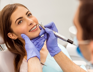 Ультразвуковая чистка, установка имплантов, а также металлических, сапфировых и керамических брекетов в стоматологии BEST CLINIC со скидкой до 75%!