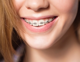 Идеальная улыбка! Установка металлических и керамических брекетов от стоматолога Эйбова Зульфикара со скидкой до 75%!