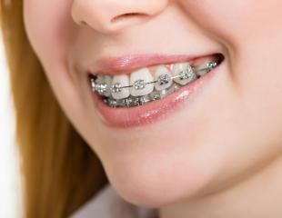 Улыбайтесь чаще! Установка брекетов и ортодонтических съемных пластин от стоматологии BeSTom со скидкой до 75%!