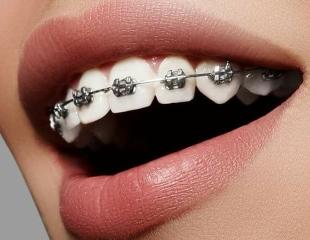 Установка металлических, керамических, сапфировых и самолигирующих брекетов от стоматолога Азнабакиева Курванжана в медцентре «Сункар»! Cкидка до 75%!