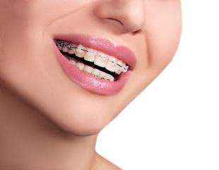 Для безупречной улыбки! Установка металлических брекетов, лечение зубов и десен, покрытие фторлаком и другое в стоматологии VIP Dent со скидкой до 71%!