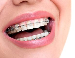 Ровные зубы — красивая улыбка! Установка брекет-систем на одну или две челюсти в стоматологии Stom Clinic! Скидка до 75%!
