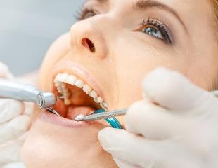 Здоровые зубы — это здорово! Лечение и чистка зубов в стоматологии «Анга» со скидкой до 79%!