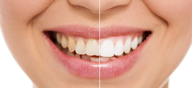 Dental Expert, 2