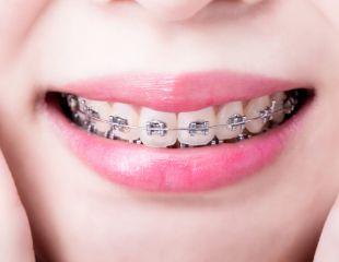 Установка металлических и керамических брекетов в стоматологии M-Stom со скидкой до 70%