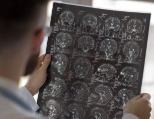Круглосуточное КТ различных органов в Медико-диагностическом центре «Европа» со скидкой 42%!