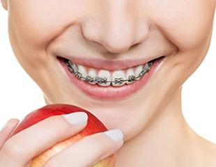 Ваша неотразимая улыбка! Установка металлических, керамических, сапфировых брекетов в стоматологической клинике «Аура» со скидкой до 80%!