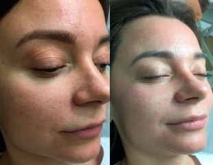Косметологический уход для кожи лица и фотоомоложение в салоне La Rose со скидкой до 87%!